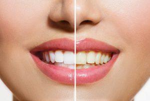 Denta Blanic - účinky - cena - jak používat